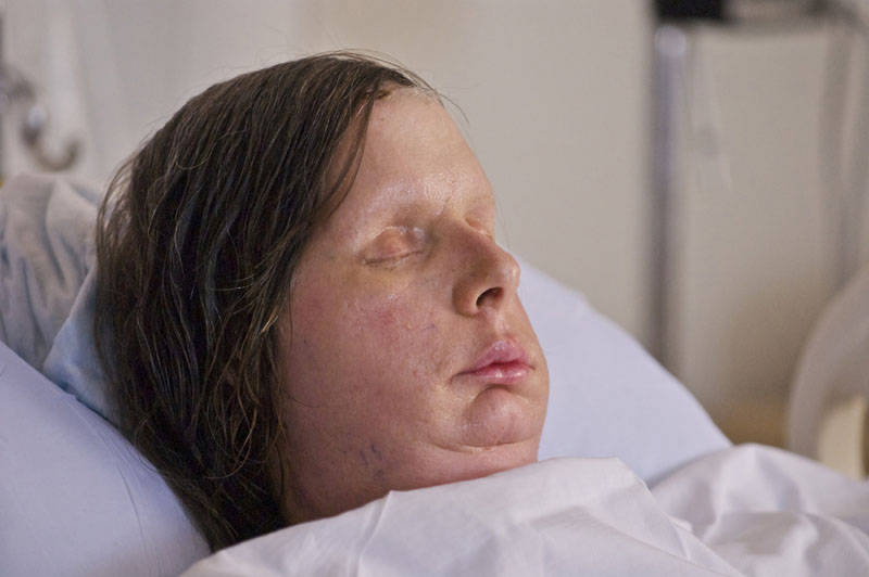 In this undated photo provided by Brigham and Women's Hospital, Charla Nash is seen after her May, 2011, face transplant at the hospital. The Connecticut woman was mauled by a chimpanzee in 2009. (AP Photo/Brigham and Women's Hospital, Lightchaser Photography)