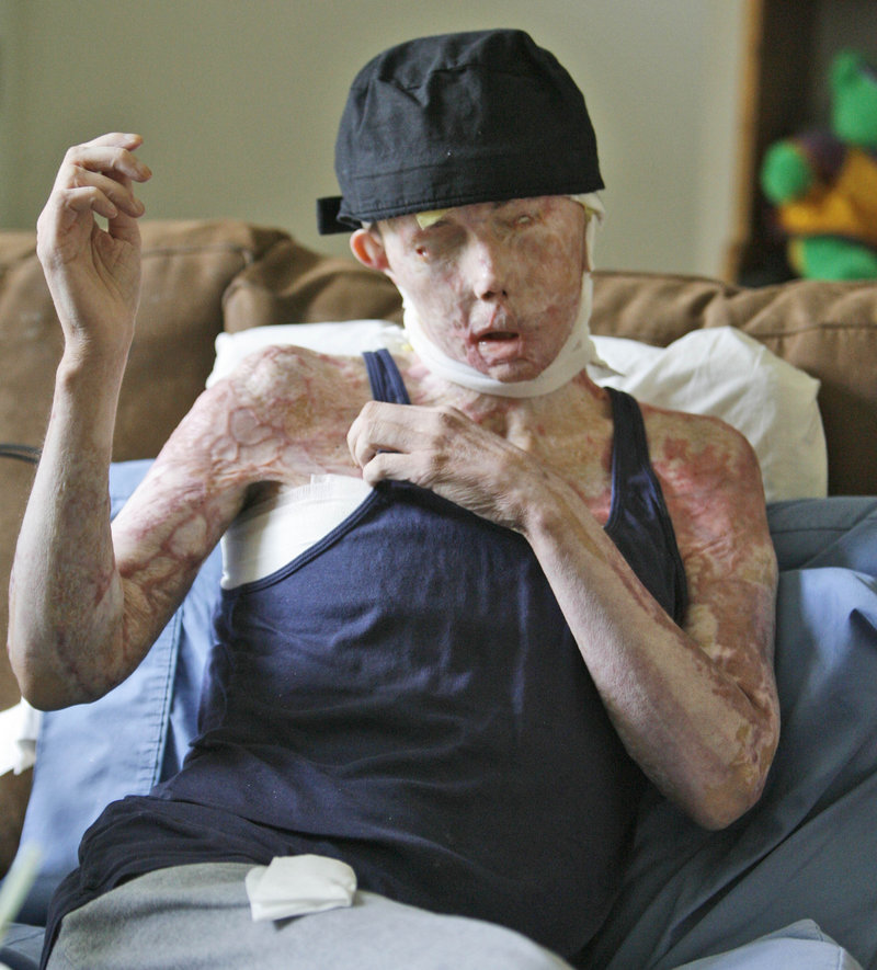 In this Aug. 20, 2008, file photo, Carmen Tarleton is interviewed in her home in Thetford , Vt. The Vermont woman who was disfigured and blinded in a lye attack by her ex-husband has written a book recounting her experiences. (AP Photo/Toby Talbot)