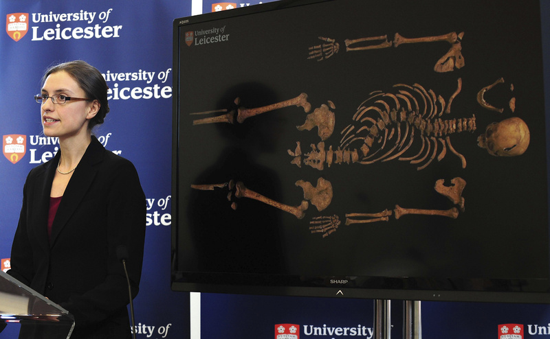 Jo Appleby stands in front of a picture of the skeleton that shows the spinal curvature of scoliosis.