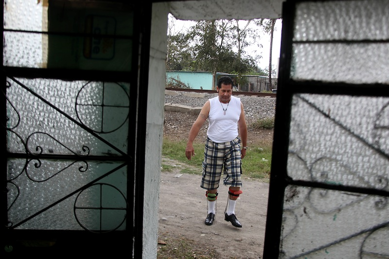 In this Wednesday March 6, 2013 photo, Jose Guadalupe Rodriguez-Saldana, 38, walks with orthopedic supports outside of his home in the town of Tierra Blanca, Veracruz state, Mexico. Rodriguez-Saldana and another friend suffered serious injuries during a car accident last May 2008 in northwestern Iowa. After their employers insurance coverage ran out, Rodriguez-Saldana, who was not a legal citizen, was placed on a private airplane and flown to Mexico still comatose and unable to discuss his care or voice his protest. Hospitals confronted with absorbing the cost of caring for uninsured seriously injured immigrants are quietly deporting them, often unconscious and unable to protest, back to their home countries. (AP Photo/Felix Marquez)