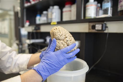 A researcher holds a human brain in a laboratory at Northwestern University's cognitive neurology and Alzheimer's disease center in Chicago. Studies show that in super agers, the brain's cortex, or outer layer, responsible for many mental functions including memory, is thicker than in typical 80- and 90-year-olds.