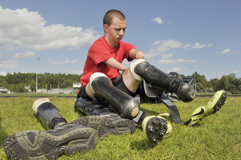 Josh Kennison of Norway, who was born without feet, arms, tongue and part of his jaw, attaches his prosthetic running legs before a run at Oxford Hills High School.