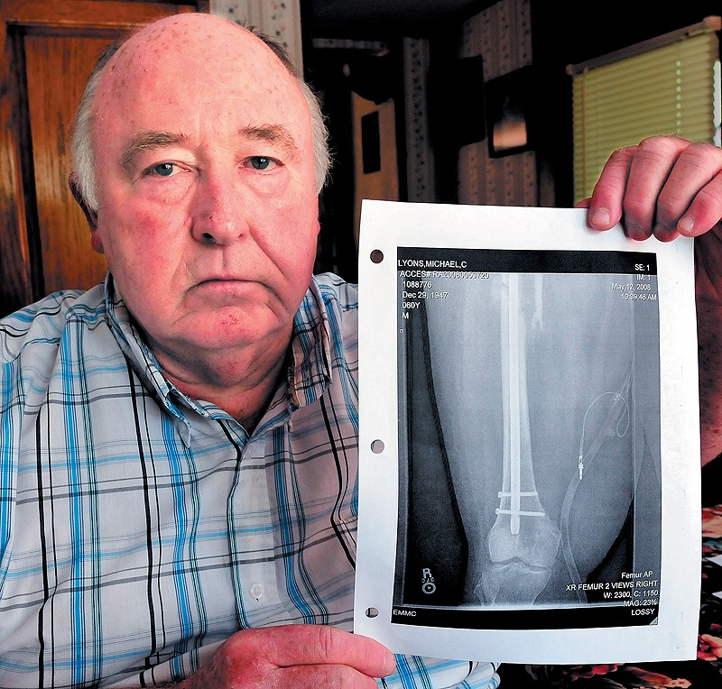 Mike Lyons holds a copy of an X-ray of his femur that was repaired after it was seriously injured in 2008.