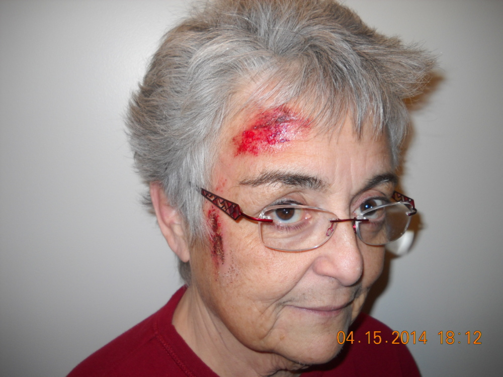 Deborah Nielson suffered injuries when she was attacked after walking in on burglars in her Buxton home.