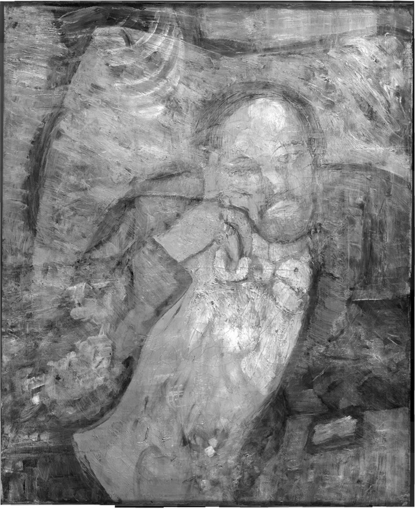 """An infrared image of Pablo Picasso's """"The Blue Room,"""" painted in 1901, reveals a bow-tied man with his face resting on his hand, with three rings on his fingers.  The Associated Press/The Phillips Collection"""